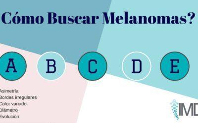Cómo buscar melanomas