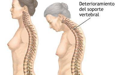 Osteoporosis: Deterioro de la columna vertebral