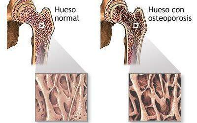 Hueso normal y hueso con osteoporosis