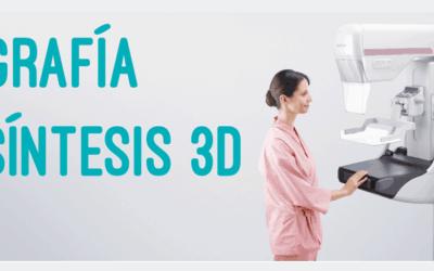 La Mamografía Tomosíntesis 3D