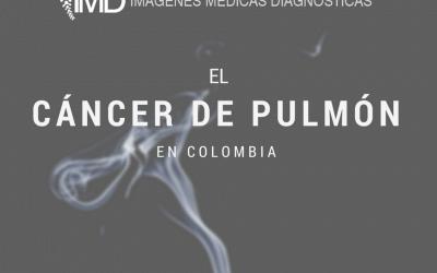 El cáncer de pulmón en Colombia